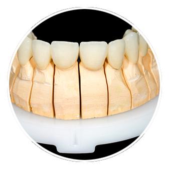 Impresion 3D Medicina dental