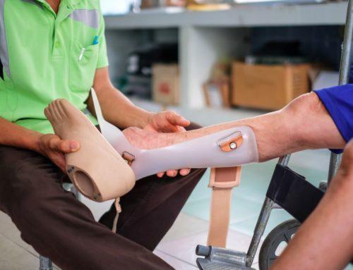 Ventajas de crear material ortopédico con impresoras 3D