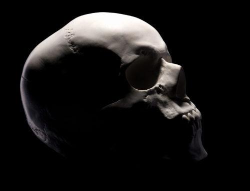 Un cráneo impreso en 3D salva una vida